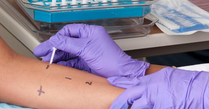 Skin Prick Testing